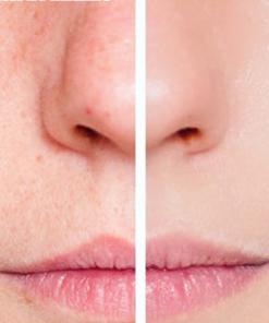 segreti di donna pulizia viso
